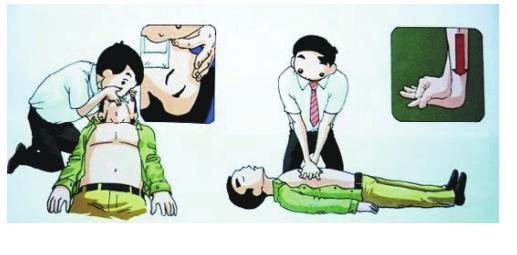 (六)心肺复苏紧急处理